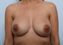 Breast Implant Revision After Photo by Paul Vitenas, Jr., MD; Houston, TX - Case 37541
