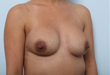 Breast Implant Revision Before Photo by Paul Vitenas, Jr., MD; Houston, TX - Case 37541