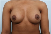 Breast Augmentation After Photo by Paul Vitenas, Jr., MD; Houston, TX - Case 43108