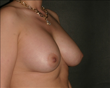 Breast Augmentation After Photo by Otto Placik, MD, FACS; Arlington Heights, IL - Case 23643
