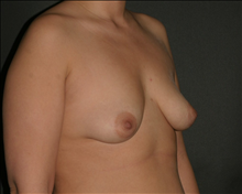 Breast Augmentation Before Photo by Otto Placik, MD, FACS; Arlington Heights, IL - Case 23643