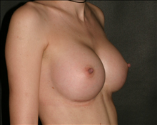 Breast Augmentation After Photo by Otto Placik, MD, FACS; Arlington Heights, IL - Case 23644