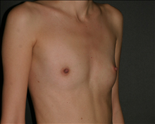 Breast Augmentation Before Photo by Otto Placik, MD, FACS; Arlington Heights, IL - Case 23644
