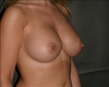 Breast Augmentation After Photo by Otto Placik, MD, FACS; Arlington Heights, IL - Case 23645