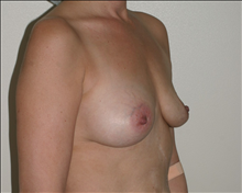 Breast Augmentation Before Photo by Otto Placik, MD, FACS; Arlington Heights, IL - Case 23646