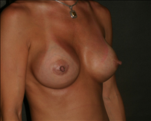 Breast Augmentation After Photo by Otto Placik, MD, FACS; Arlington Heights, IL - Case 23647