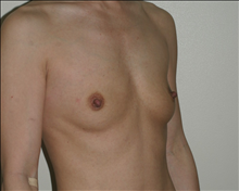 Breast Augmentation Before Photo by Otto Placik, MD, FACS; Arlington Heights, IL - Case 23647