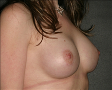 Breast Augmentation After Photo by Otto Placik, MD, FACS; Arlington Heights, IL - Case 23648