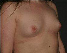 Breast Augmentation Before Photo by Otto Placik, MD, FACS; Arlington Heights, IL - Case 23648
