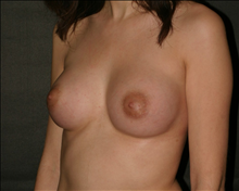 Breast Augmentation After Photo by Otto Placik, MD, FACS; Arlington Heights, IL - Case 23649