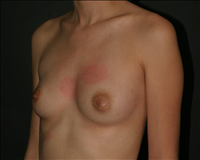 Breast Augmentation Before Photo by Otto Placik, MD, FACS; Arlington Heights, IL - Case 23649