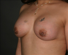 Breast Augmentation After Photo by Otto Placik, MD, FACS; Arlington Heights, IL - Case 23651