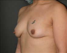 Breast Augmentation Before Photo by Otto Placik, MD, FACS; Arlington Heights, IL - Case 23651