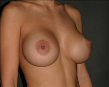 Breast Augmentation After Photo by Otto Placik, MD, FACS; Arlington Heights, IL - Case 23652