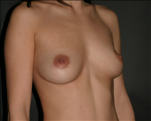 Breast Augmentation Before Photo by Otto Placik, MD, FACS; Arlington Heights, IL - Case 23652