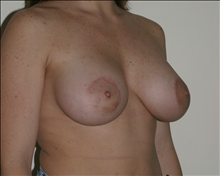 Breast Augmentation After Photo by Otto Placik, MD, FACS; Arlington Heights, IL - Case 23653