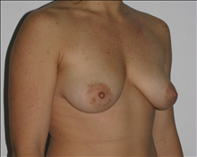 Breast Augmentation Before Photo by Otto Placik, MD, FACS; Arlington Heights, IL - Case 23653
