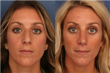 Rhinoplasty After Photo by Ronald Schuster, MD; Lutherville, MD - Case 32366