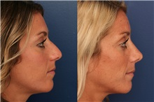 Rhinoplasty Before Photo by Ronald Schuster, MD; Lutherville, MD - Case 32366