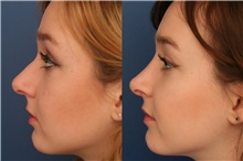 Rhinoplasty Before Photo by Ronald Schuster, MD; Lutherville, MD - Case 32367