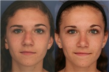 Rhinoplasty After Photo by Ronald Schuster, MD; Lutherville, MD - Case 32368
