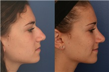 Rhinoplasty Before Photo by Ronald Schuster, MD; Lutherville, MD - Case 32368
