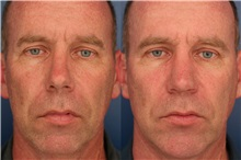 Rhinoplasty After Photo by Ronald Schuster, MD; Lutherville, MD - Case 32370