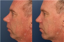 Rhinoplasty Before Photo by Ronald Schuster, MD; Lutherville, MD - Case 32370