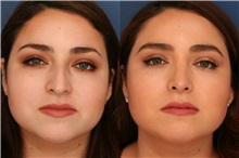 Rhinoplasty After Photo by Ronald Schuster, MD; Lutherville, MD - Case 32371