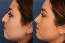Rhinoplasty Before Photo by Ronald Schuster, MD; Lutherville, MD - Case 32371