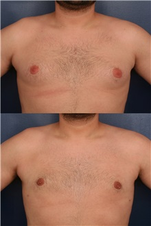 Male Breast Reduction After Photo by Ronald Schuster, MD; Lutherville, MD - Case 32372