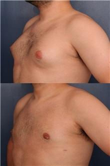 Male Breast Reduction Before Photo by Ronald Schuster, MD; Lutherville, MD - Case 32372