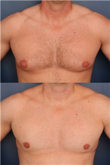 Male Breast Reduction After Photo by Ronald Schuster, MD; Lutherville, MD - Case 32373