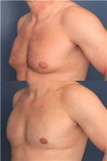Male Breast Reduction Before Photo by Ronald Schuster, MD; Lutherville, MD - Case 32373