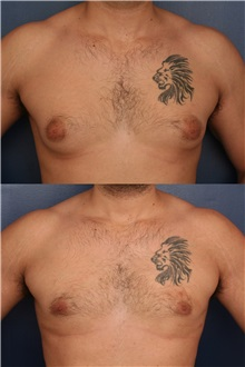 Male Breast Reduction After Photo by Ronald Schuster, MD; Lutherville, MD - Case 32374