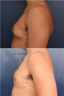 Male Breast Reduction Before Photo by Ronald Schuster, MD; Lutherville, MD - Case 32374
