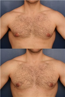 Male Breast Reduction After Photo by Ronald Schuster, MD; Lutherville, MD - Case 32375