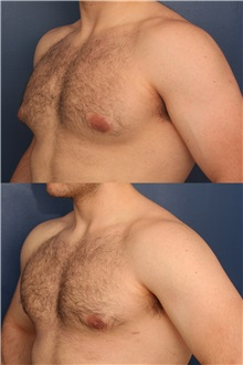 Male Breast Reduction Before Photo by Ronald Schuster, MD; Lutherville, MD - Case 32375