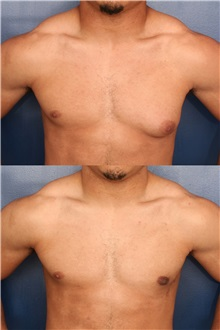 Male Breast Reduction After Photo by Ronald Schuster, MD; Lutherville, MD - Case 32376