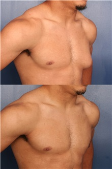 Male Breast Reduction Before Photo by Ronald Schuster, MD; Lutherville, MD - Case 32376