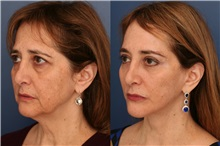 Facelift After Photo by Ronald Schuster, MD; Lutherville, MD - Case 32378