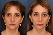 Facelift Before Photo by Ronald Schuster, MD; Lutherville, MD - Case 32378