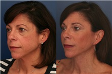 Facelift After Photo by Ronald Schuster, MD; Lutherville, MD - Case 32379