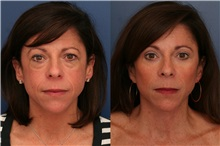 Facelift Before Photo by Ronald Schuster, MD; Lutherville, MD - Case 32379