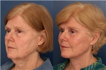 Facelift After Photo by Ronald Schuster, MD; Lutherville, MD - Case 32385