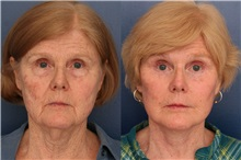 Facelift Before Photo by Ronald Schuster, MD; Lutherville, MD - Case 32385