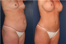 Tummy Tuck After Photo by Ronald Schuster, MD; Lutherville, MD - Case 32386