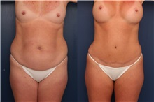 Tummy Tuck Before Photo by Ronald Schuster, MD; Lutherville, MD - Case 32386