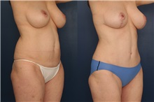 Tummy Tuck After Photo by Ronald Schuster, MD; Lutherville, MD - Case 32387