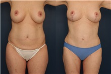 Tummy Tuck Before Photo by Ronald Schuster, MD; Lutherville, MD - Case 32387